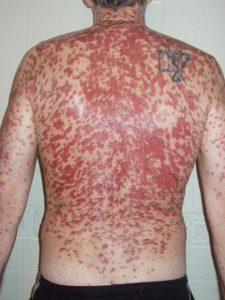عوارض پوستی لاموتریژین